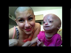 Adalia with her mother
