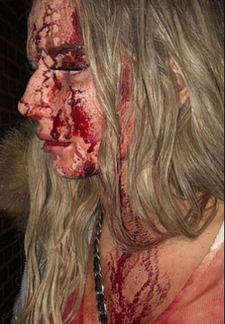 Photo of                               Sophie Johansson                              bleeding from her head due to the assault.
