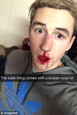 The ex-boyfriend of Katie Anna, Ben Kebbell, who has shared his broken nose on social media.