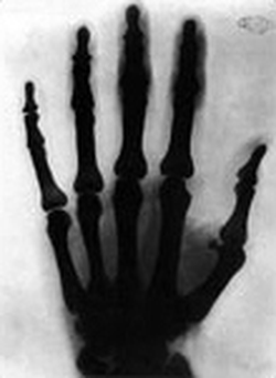 X-ray of a hand, taken by Tesla