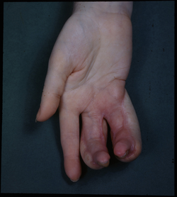 Deformity of hand due to an X-ray burn. These burns are accidents. X-rays were not shielded when they were first discovered and used, and people got radiation burns.