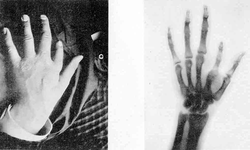"1896 plaque published in ""Nouvelle Iconographie de la Salpetrière"", a medical journal. In the left a hand deformity, in the right same hand seen using radiography. The authors designated the technique as Röntgen photography."