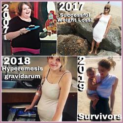 Hyperemesis gravidarum survivor and advocate.