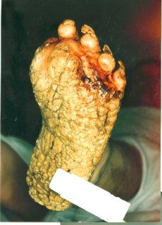 Palmoplantar keratoderma